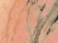 rose du portugal  marbrerie bonaldi le Muy var